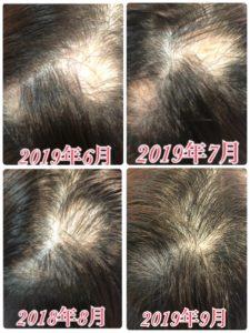 脱毛 症 円形 円形脱毛症